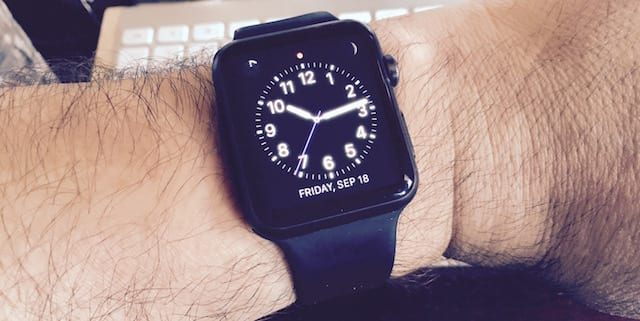 Apple Watch and hairy wrist